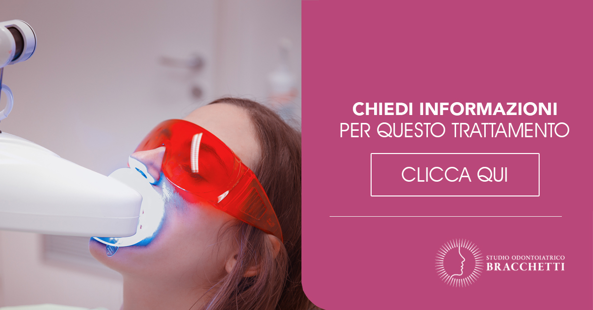 sbiancamento-dentale-professionale-milano